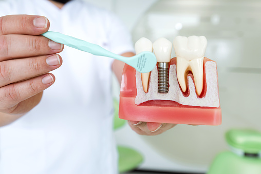 The Do's and Don'ts of Dental Implant Aftercare